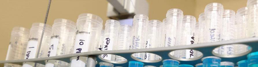 iodine test tubes